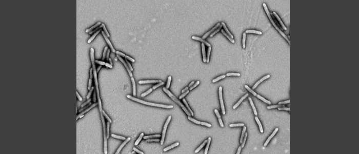 Bacterias fermentadoras de fibra mejora los síntomas de la diabetes tipo 2
